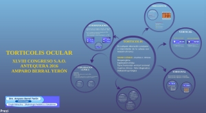 Torticolis ocular - Blog oftalmologia